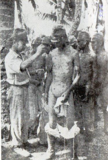 メレヨン島の兵士皮膚病対策にクレゾール液を塗る